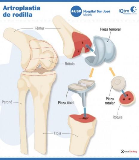 artroplastiaderodilla
