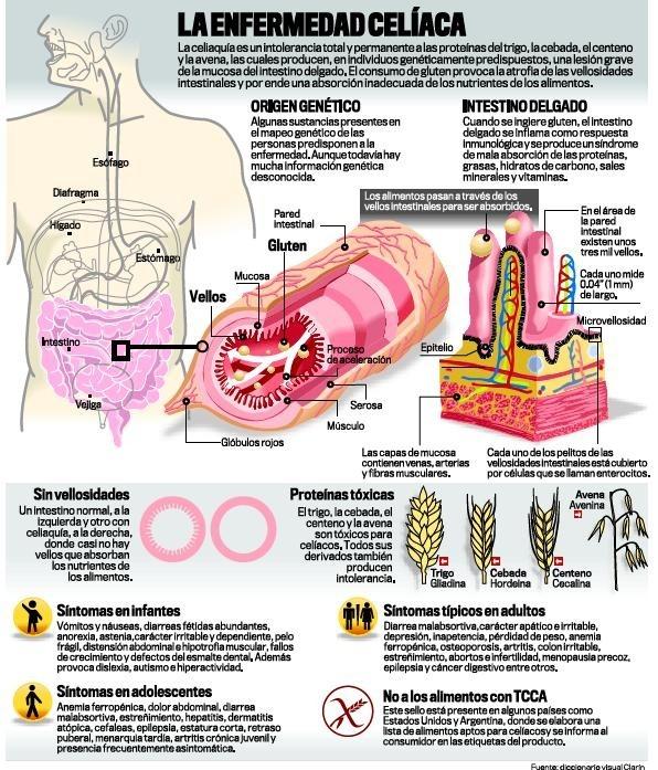 infografa-de-la-Enfermedad-Celiaca-El-Clarin-