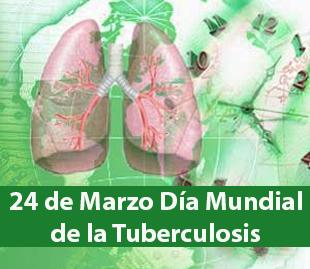 24marzotuberculosis_310x269x64