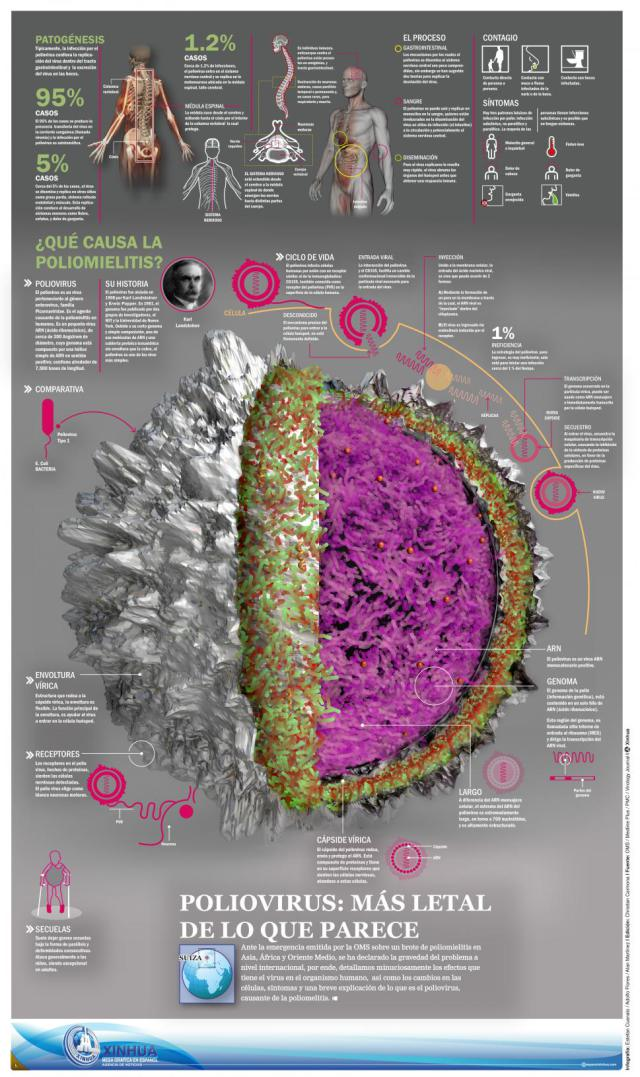infografia_poliomielitis