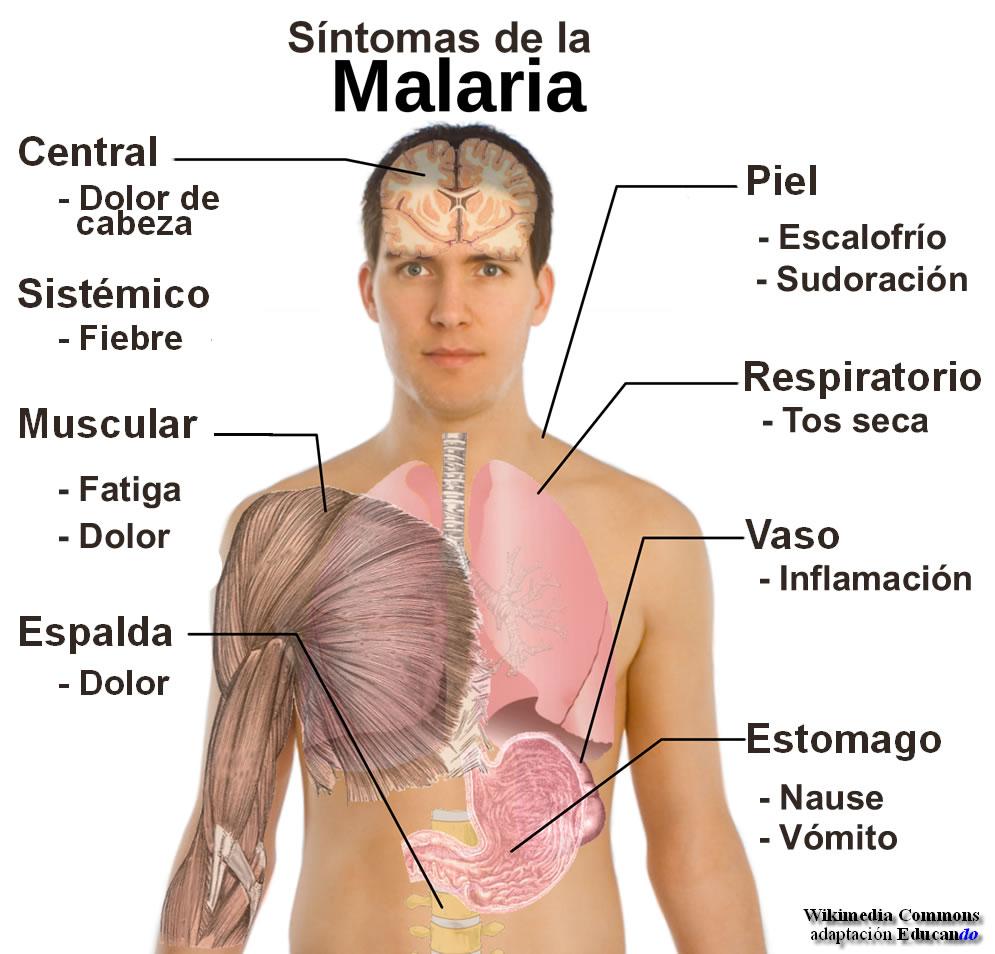 Casos-de-paludismo-en-el-mundo-podrian-aumentar_9705